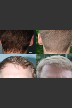 Before Photo for Neograft Hair Transplant   - Mark B. Taylor, M.D. - ZALEA Before & After