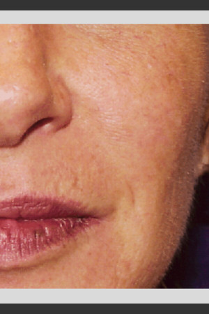 After Photo for Vbeam. Pulsed Dye Laser treatment of Rosacea   - ZALEA Before & After