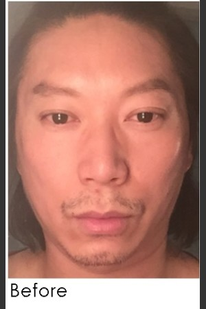 Before Photo for Sculptra for Male Facial Rejuvenation   - Annie Chiu, MD - ZALEA Before & After