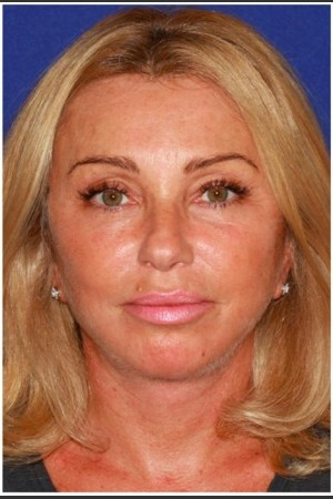 After Photo for Facelift - Case 27   - Konstantin Vasyukevich, MD - ZALEA Before & After