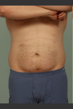 Before Photo for Liposuction   - El Paso Cosmetic Surgery - ZALEA Before & After