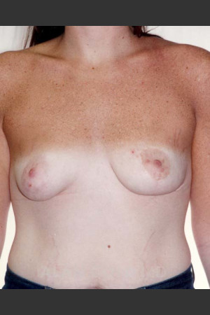 After Photo for Asymmetrical Breast 481   - Alan Gold MD - ZALEA Before & After
