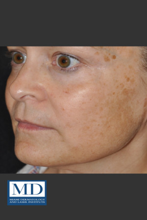 Before Photo for Melasma Face Treatment 116   - Jill S. Waibel, MD - ZALEA Before & After