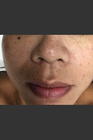 Before Photo for IPL Photofacial    - Janell Ocampo - ZALEA Before & After