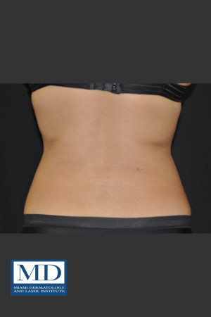 After Photo for  Body Contouring Treatment 141   - Jill S. Waibel, MD - ZALEA Before & After