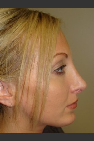 After Photo for Rhinoplasty 6574   - Sanjay Grover MD FACS - ZALEA Before & After