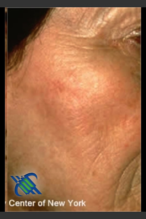 After Photo for Treatment of Brown Spot on Cheek   - Roy G. Geronemus, M.D. - ZALEA Before & After