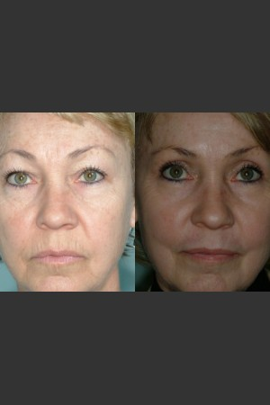 After Photo for Laser resurfacing and laser eyelid surgery performed on same day. - Mark B. Taylor, M.D. - Prejuvenation
