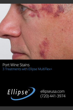 Before Photo for 3 Treatments of Port Wine Stain on the Face   - ZALEA Before & After