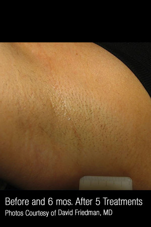 After Photo for Hair Removal #313 -  - Prejuvenation