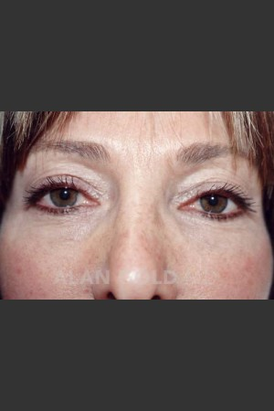 Before Photo for Blepharoplasty 1004 - Alan Gold MD - Prejuvenation