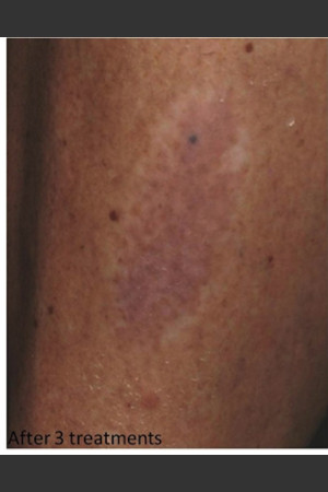 After Photo for Treatment of Tattoo -  - Prejuvenation
