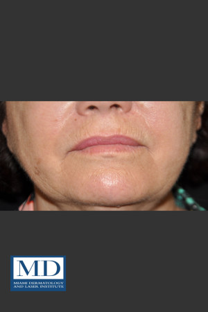 Before Photo for Wrinkle Treatment 125   - Jill S. Waibel, MD - ZALEA Before & After