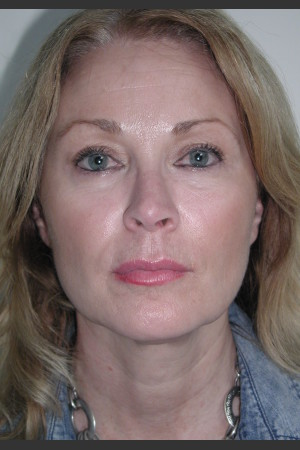 After Photo for Sculptra for Facial Volume Restoration - James Newman - Prejuvenation
