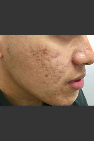 Before Photo for Microneedling    - Janell Ocampo - ZALEA Before & After