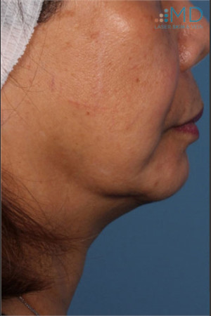 Before Photo for Ultherapy Skin Laxity Treatment of Lower Face - Margaret Ann Weiss - Prejuvenation
