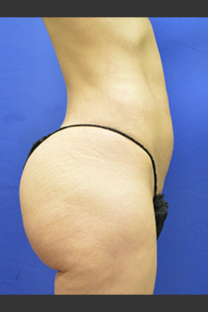 After Photo for Brazilian Butt Lift Case #1   - Paul C. Dillon, MD - ZALEA Before & After