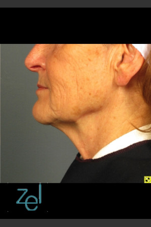 After Photo for Ultherapy on Mid Face with Dermal Fillers   - Brian D. Zelickson, M.D. - ZALEA Before & After