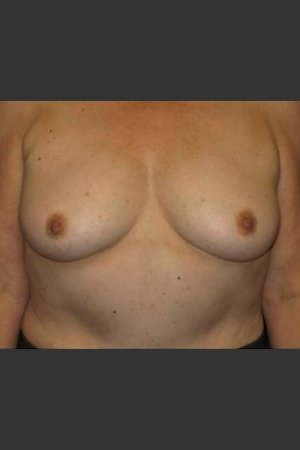 Before Photo for Breast Augmentation    - Robert Aycock - ZALEA Before & After