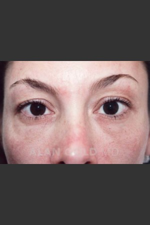 Before Photo for Blepharoplasty 871   - Lawrence Bass MD - ZALEA Before & After