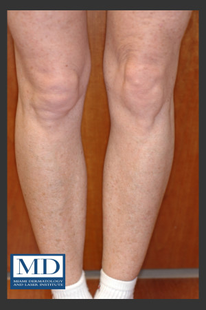 After Photo for Photorejuvenation Treatment 111   - Jill S. Waibel, MD - ZALEA Before & After