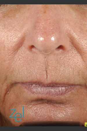 After Photo for Treatment of Peri-Oral Lines and Wrinkles   - Brian D. Zelickson, M.D. - ZALEA Before & After