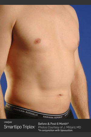 Before Photo for Smartlipo High Def Laser Lipo   - ZALEA Before & After