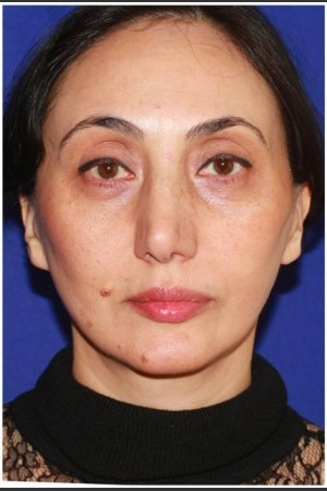 After Photo for Facelift - Case 23   - Konstantin Vasyukevich, MD - ZALEA Before & After