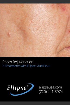 After Photo for Full Face Rejuvenation after 3 Treatments    - ZALEA Before & After