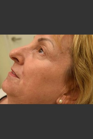 After Photo for Fraxel Laser Treatment for Pigmentation   - Skin Cancer Specialists P.C. & Aesthetic Center - ZALEA Before & After