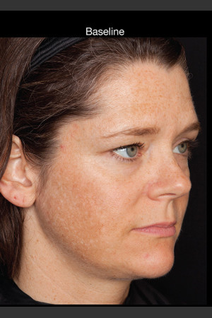 Before Photo for Hyperpigmentation - Professional Peel   - Lawrence Bass MD - ZALEA Before & After