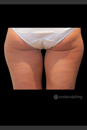 Before Photo for CoolSculpting on Woman's Inner Thigh   - ZALEA Before & After