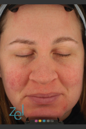 After Photo for Treatment of Facial Redness    - Lawrence Bass MD - ZALEA Before & After