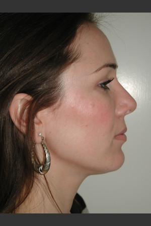 After Photo for Rhinoplasty   - James Newman - ZALEA Before & After