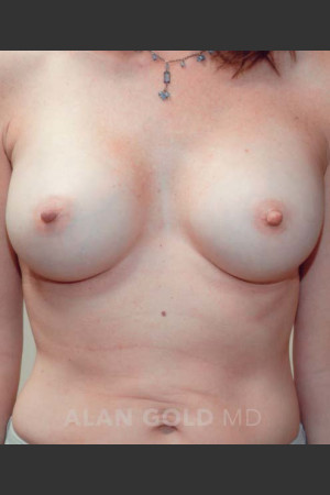 After Photo for Breast Augmentation 570   - Alan Gold MD - ZALEA Before & After
