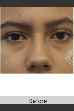 Before Photo for Undereye Filler   - Annie Chiu, MD - ZALEA Before & After