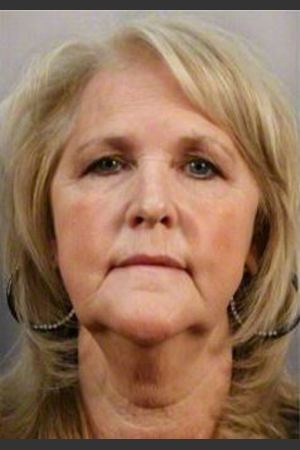 Before Photo for 58 Year Old Female: Facelift - R. Scott Yarish MD, FACS - Prejuvenation