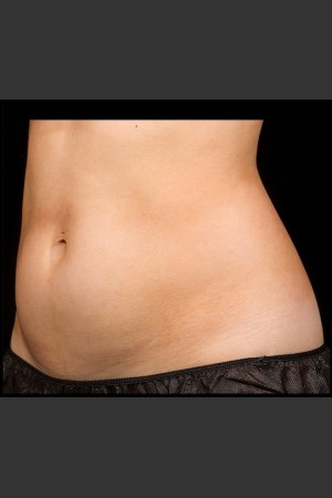 Before Photo for SculpSure Abdomen   - Lawrence Bass MD - ZALEA Before & After