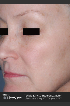 After Photo for Full Face Wrinkle Treatment With PicoSure   - ZALEA Before & After