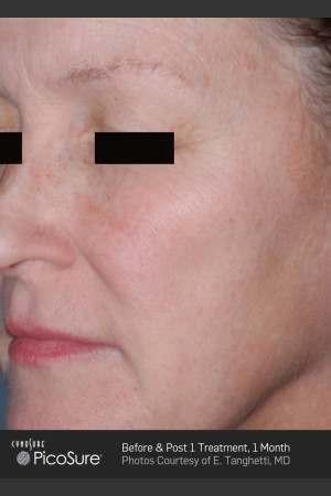 Before Photo for Full Face Wrinkle Treatment With PicoSure   - ZALEA Before & After