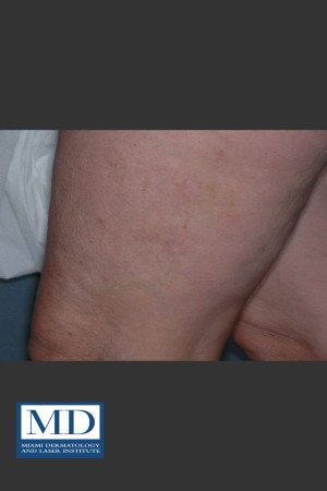 After Photo for Sclerotherapy Treatment 139   - Lawrence Bass MD - ZALEA Before & After