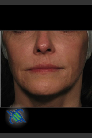 Before Photo for Facial Laxity of Lower Face with Profound   - Roy G. Geronemus, M.D. - ZALEA Before & After