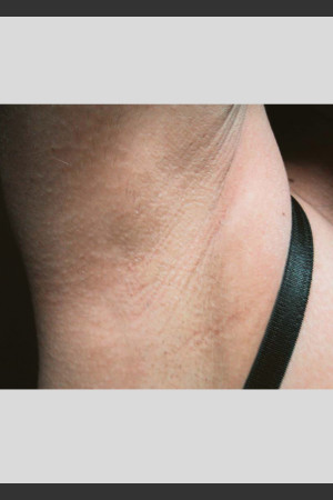 After Photo for Treatment of Underarms with Gentle Laser   - Lawrence Bass MD - ZALEA Before & After