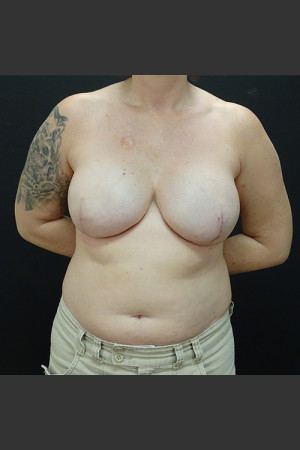 After Photo for Breast Reconstruction Case #1 - Gallaher Plastic Surgery & Spa MD - Prejuvenation