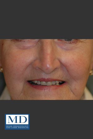 After Photo for Rosacea Treatment 101   - Jill S. Waibel, MD - ZALEA Before & After