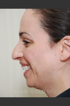 Before Photo for Rhinoplasty 1683 Side View - Alan Gold MD - Prejuvenation