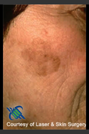 Before Photo for Treatment of Brown Spot on Cheek   - Roy G. Geronemus, M.D. - ZALEA Before & After