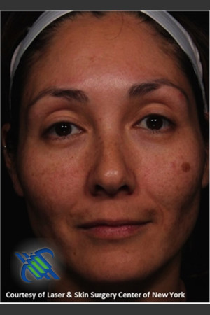 Before Photo for Treatment of Melasma   - Roy G. Geronemus, M.D. - ZALEA Before & After