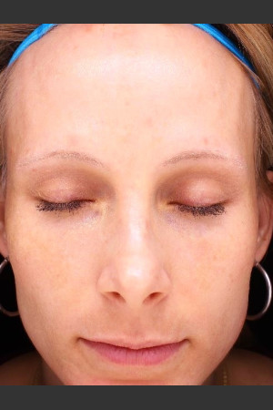 After Photo for Photoaging and Melasma    - Paul M. Friedman, M.D. - ZALEA Before & After