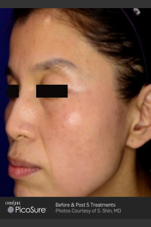 After Photo for Treatment of Pigmented Lesions   - ZALEA Before & After